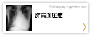 肺高血圧症 Pulmonary hypertension